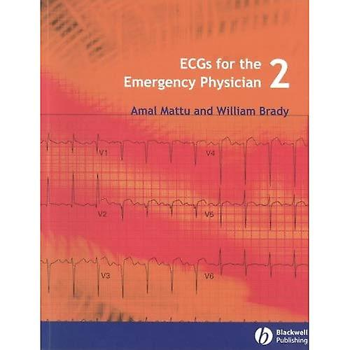 ECGs for the Emergency Physician  Level 2
