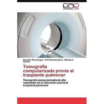 Tomografa computarizada previa al trasplante pulmonar by Prez Enguix Daniel B.