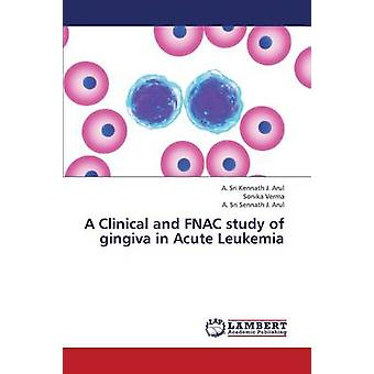 A Clinical and Fnac Study of Gingiva in Acute Leukemia by J. Arul a. Sri Kennath