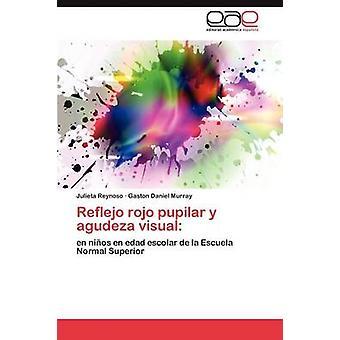 Reflejo Rojo Pupilar y Agudeza Visual door Reynoso Julieta