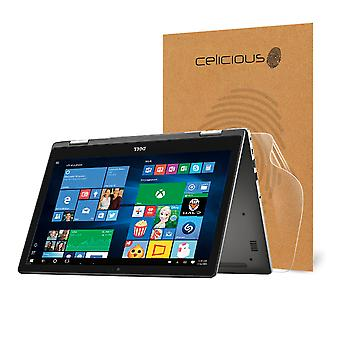 Celicious Impact Anti-Shock Shatterproof Screen Protector Film Compatible with Dell Inspiron 15 7569